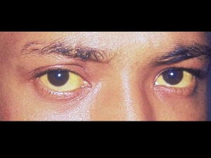 What Causes Yellow Eyes