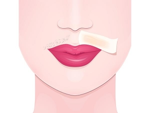 Diy Home Remedies To Remove Upper Lip Hair