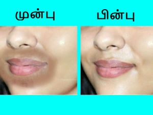 Remedies To Remove Dark Patches Around Mouth