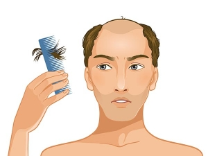 Health And Medical Reasons That Cause Hair Loss