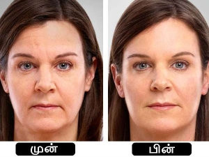 Top Anti Ageing Home Remedies To Look 10 Years Younger