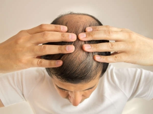 What Is Frontal Hair Loss And How To Treat It
