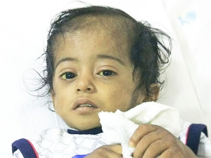 Only A Miracle And Help By Doners Can Save This Little Kid