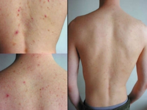 How To Get Rid Of Shoulder Acne