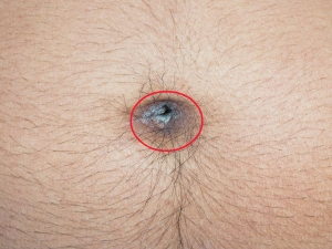 Effective Home Remedies To Belly Button Infection