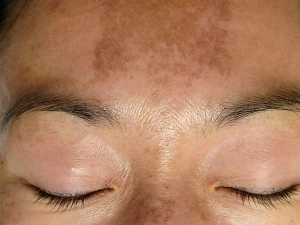 Important Things About Melasma