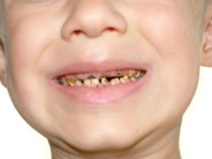 Baby Teeth Give Clues To Origins Of Autism