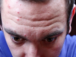 Natural Remedies To Get Rid Of Forehead Bumps