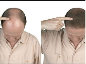 Hair Growth How To Regrow Hair After Suffering From Major Hair Loss