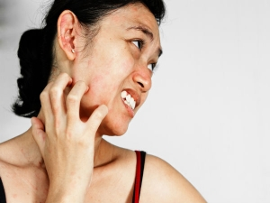 How Skin Asthma Is Treated And Managed