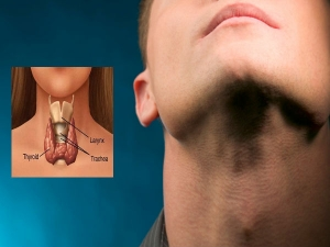 Causes And Types Of Thyroid