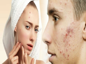 Easy Ways To Use Mint Leaves To Get Rid Of Acne Scars