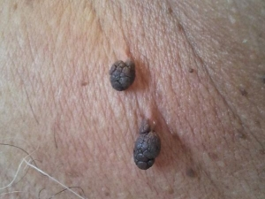 Is Skin Tag A Tumour Or Skin Disease In Tamil