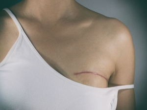 Home Remedies For Breast Infection