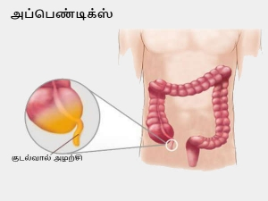 Appendicitis Causes Symptoms And Treatment