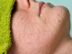 Amazing Home Remedies Skin Pores Acne