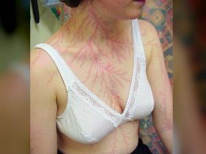 Look At The Lightning Strike Survivors Skin Scars