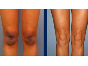 How To Get Rid Of Dark Spots On Knees And Elbows