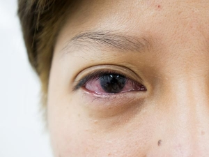 Reasons Why Your Eyes Are Constantly Watery
