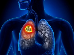 What Are The Early Signs Of Lung Cancer In Men