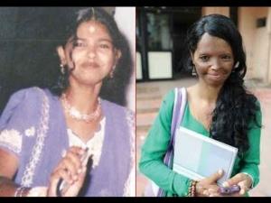 Before After Life Laxmi Agarwal An Acid Attack Survivor