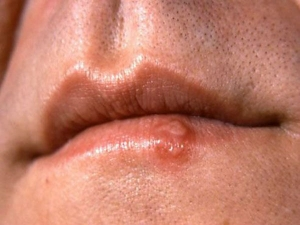 How To Get Rid Of Swollen Lips Overnight
