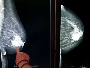 Can Dense Breast Tissue Turn Into Cancer