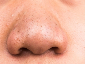 Best Remedies To Remove Blackheads With Egg White