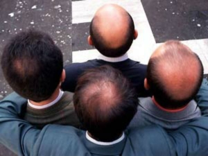 Top Home Herbal Remedies For Baldness