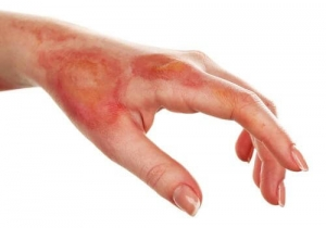 How To Treat Burns With Home Remedies