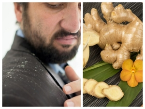 How To Get Rid Of Dandruff Using Ginger
