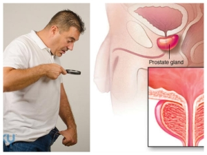 Everyday Habits That Lead To Prostate Cancer