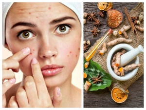 Ayurvedic Remedies For Hormonal Acne