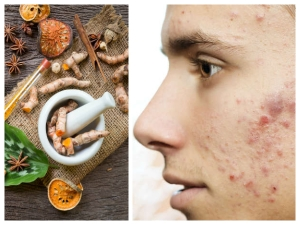 Natural Herbs That Will Help You To Heal Acne Scars