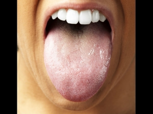 7 Natural Remedies For A White Tongue