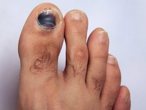 Subtle Signs Of Disease Your Feet Can Reveal