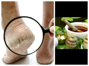 Ayurvedic Remedies For Cracked Heels