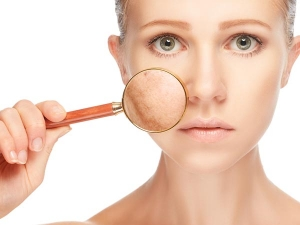 How To Remove Dark Patches On The Face Naturally
