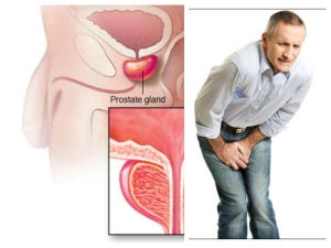 Foods That Can Help To Prevent From Prostate Cancer