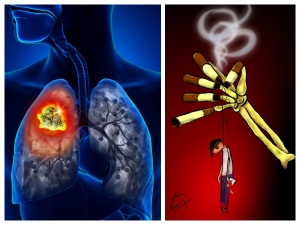 Everyday Habits That Can Damage Your Lungs