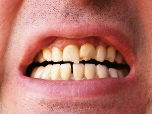 10 Health Problems Caused By Bad Teeth