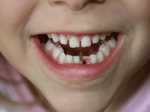 The Very Valid Reason For Keeping Your Baby S Lost Tooth