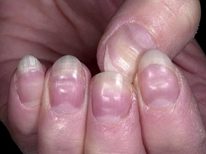 What Is Yellow Nail Syndrome And Its Remedies