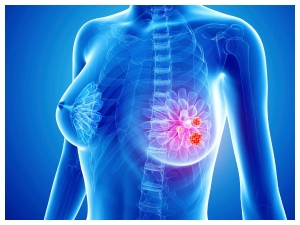 Home Remedies To Get Rid Of Breast Infections