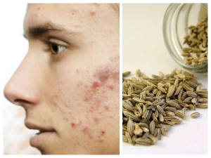 Beauty Benefits Of Fennel Seeds For Skin