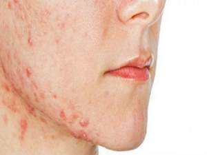 Rosacea Types Symptoms Causes And Home Remedies