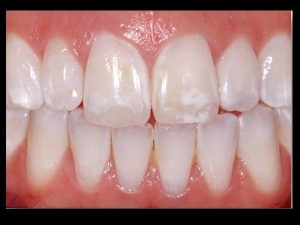 How To Get Rid White Spots On Your Teeth