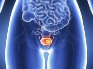 Bladder Infection Symptoms