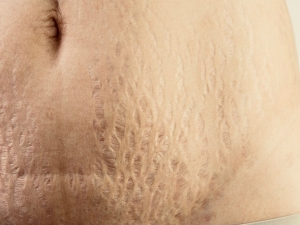 Best Coffee Scrub For Removing Stretch Marks