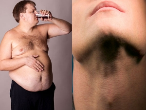 Ways To Lose Weight With An Underactive Thyroid